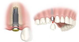 implanty tytanowe